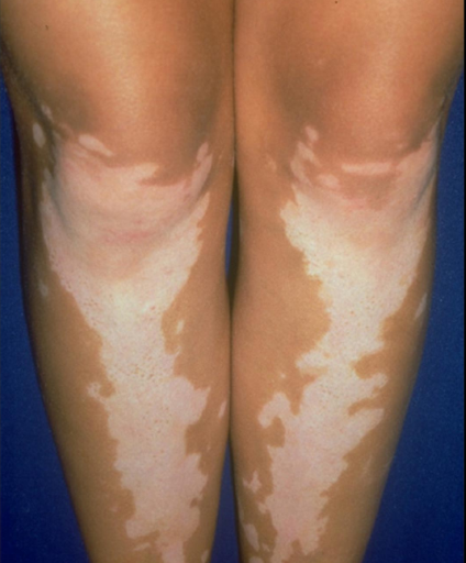 What S Causing White Spots On Legs And How Can I Treat Them Storytimes