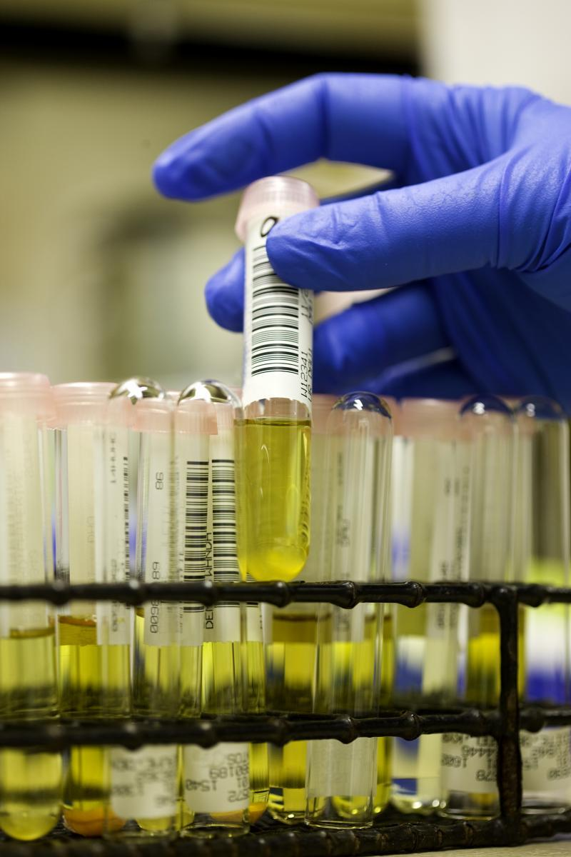 Heavy Metals Found In Urine Samples