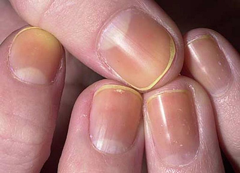 Fingernail Symptoms of Illness