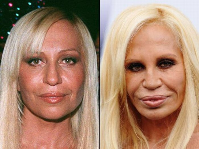 Celebrities Who Didn't Age Well